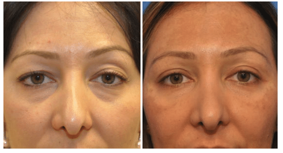 A before and after image of a woman that underwent Eyelid Surgery at Northwestern Plastic Surgery